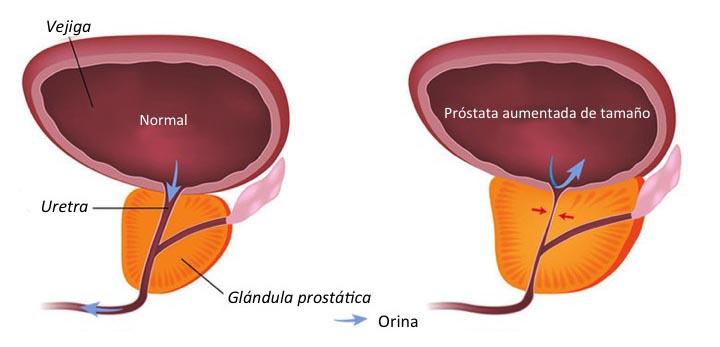 esquema de próstata