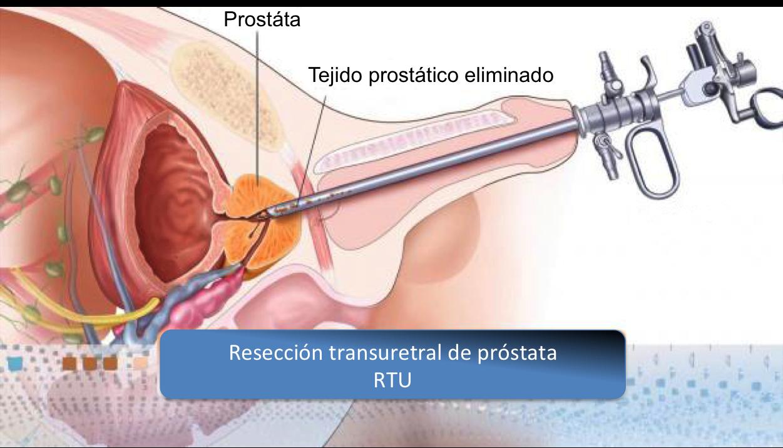 tratamiento de la hiperplasia benigna de próstata mediante embolización arterial