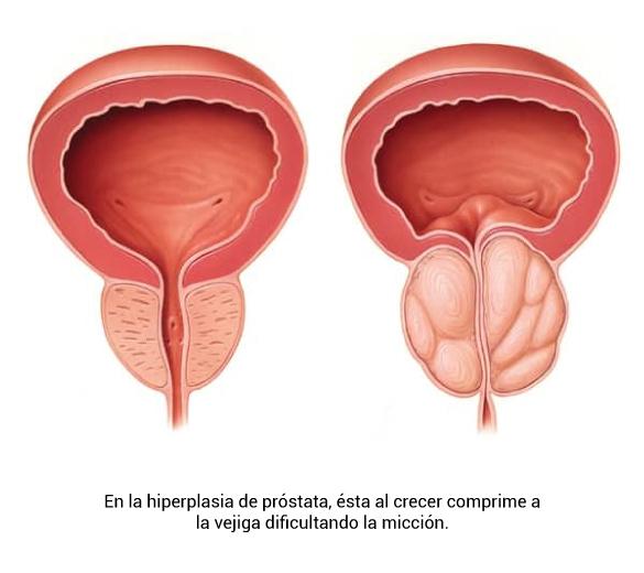 embolización romana de próstata